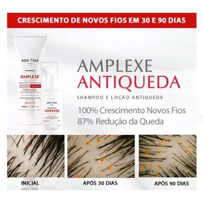 Imagem 2 do produto Amplexe Antiqueda Ada Tina - Tratamento Antiqueda - 50ml