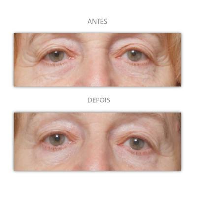Imagem 5 do produto Máscara Anti-idade Iluminage Beauty -