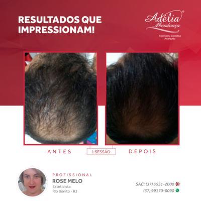 Imagem 7 do produto Kit Home Care Hair Ceuticals - 3 produtos